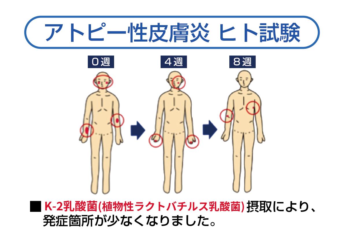アトピー性皮膚炎 ヒト試験結果